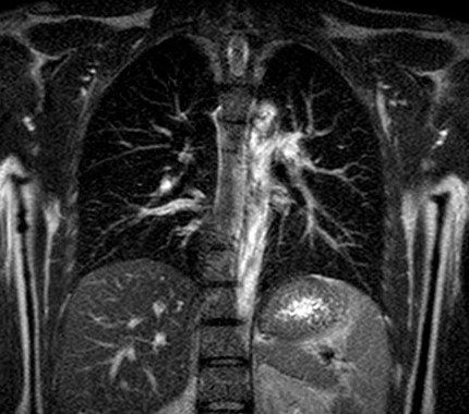 Whole Body MRI Cancer Screening